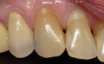 Figure 4  Facial Class V composite on tooth Nos. 6 and 7 in a patient with excellent home care. Note the healthy gingiva adjacent to restorations even with the bulky restoration on tooth No. 7.