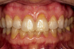 Figure  10  No gingival recession is evident.