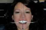 Figure 11  Use of Kois Dento-Facial Analyzer