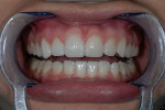 Figure 15  Prepless veneers tried in on right side next to prototypes on left side