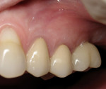 Figure  9   Left molar 1 year after implant placement reveals good gingival contour and esthetics.