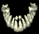 Figure 10  Supernumerary teeth (mesiodens), anterior maxilla, 3-D reformation.