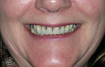 Figure 2  Close-up preoperative view; note the lack of interdental papillae and resulting