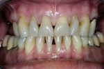 Figure 3  Retracted preoperative view showing triangular shaped teeth, which contribute to the esthetic challenge.