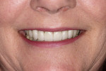 Figure 20  Final postoperative photographs demonstrate successful esthetic results.
