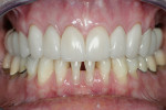 Figure 21  Final postoperative photographs demonstrate successful esthetic results.