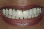 Figure 11  Post-treatment smile reveals natural-looking gingival tissue, as well as implants, in the location of the cuspids and porcelain veneers on the lateral incisors.