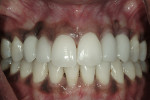 Figure 12  Post-treatment retracted smile reveals natural-looking gingival tissue and implants in the location of the cuspids and porcelain veneers on the lateral incisors.