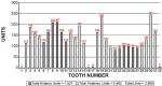 Figure 11  Distribution of units by tooth number.
