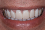 Figure 6  Anterior provisional restorations should reflect the planned final restorations.