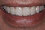 Figure 11  Postoperative smile view of completed case.