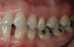 Figure 8  Diastema between tooth Nos. 22 and 23 was a major concern for the patient.