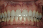 Figure 17  Correction of occlusal and gingival discrepancies was achieved by incorporating both orthodontics and restorative dentistry into the treatment plan.