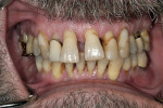Figure 3  Anterior teeth have drifted into a splayed appearance.