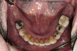 Figure 5  Lower molars lost due to periodontal disease.