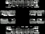Figure 6  Full-mouth radiographs taken 1 year previously.