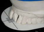 Figure 7  An esthetically oriented platform was used to communicate desired tooth position.