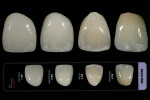 Figure 14  Chairside Shade Selection Guide offers four different stages of decalcification, or anterior stain.