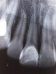 Figure 8  Radicular and periodontal integrity 7 years after treatment.
