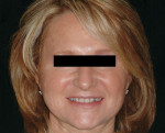 Figure 1  Fig 1. Pretreatment full-face image of the patient in smile.