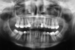 Figure 5  Pre-treatment panoramic radiograph. Note the generalized horizontal bone loss, missing maxillary right canine, and infraerupted maxillary left canine.