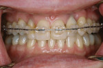 Figure 8  Frontal image of the patient in latter stages of orthodontic therapy. Note that the reverse articulation has been corrected.