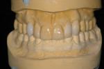 Figure 9   Second diagnostic wax-up done after orthodontic and bleaching therapy.
