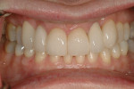 Figure 11  Posttreatment image of the patient's teeth in maximum intercuspation. Note the stable periodontal health.