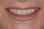 Figure 14  Posttreatment image of the patient's close-up smile.