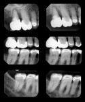 Figure 1  Circumferential bone loss is evident around tooth