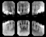 Figure 6  Root resorption on the anterior teeth contributed to a compromised crown-to-root ratio.