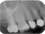 Figure 3 This patient had constant pain in the right maxilla for weeks, but this periapical radiograph failed to show any pathology.