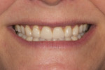 Figure 1 Preoperative view of the patient's smile exhibiting worn anterior veneers and a high gingival smile line.