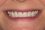 Figure 12 Postoperative smile after cementation of the veneers.
