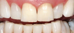 Figure 1 KöR Whitening is so effective that it can handle even tetracycline stains, offering a solution for every patient type.