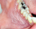 Figure 5 Smokeless tobacco lesion of the anterior mandibular vestibule with the characteristic