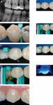 Figure 5 Clinical application of interproximal resin infiltration step-by-step: (A) Bite-wing radiograph with lesions on the distal of the first and mesial of the second maxillary right premolar. (B) Soft-tissue isolation with rubber dam. (C) Application
