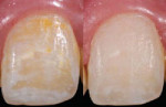 Figure 6 Resin infiltration on facial white spot lesions before (left) and after (right) treatment.