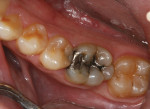Preoperative occlusal view of the defective amalgam restoration on tooth No. 30 and mesial decay on tooth No.