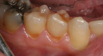 Postoperative view of the cervical restorations completed during the milling process.