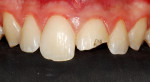 Figure 1 Clinical appearance of fractured maxillary left central incisor.