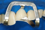 Figure 8 Tooth appearance after the removal of unsupported enamel.