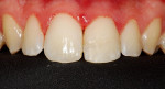 Figure 19 Tooth appearance after the esthetic restorative treatment.