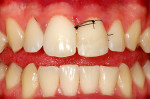 Figure 15 Tooth after the reattachment of the dental fragments and the suture of periodontal surgery.