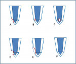 Figure 1 Common reattachment techniques for uncomplicated fractures as described by Reis, 2004: (A) enamel beveling; (B) V-shaped internal enamel groove; (C) internal dentin groove; (D) external chamfer; (E) overcontour; and (F) simple reattachment.