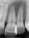 Figure 3 Five-year postoperative radiograph of first reattachment showing dentin bridge formation and periapical health.