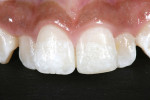 Figure 10 One year after touch-up of mesial-incisal area.