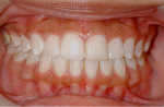Figure 12 Photograph at 4.5-year recall showing tooth still intact following orthodontic treatment.