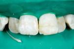 Figure 7 Reattached fragment in place before completion of restoration. Note the new fracture of the mesial-incisal angle.