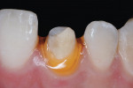 Figure 8 An anterior crown preparation. This tooth had an average gingival biotype, which allowed the use of Racegel as the sole source of gingival retraction.